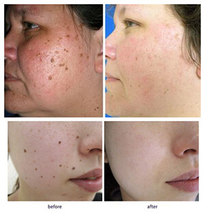 SkinCell Pro - Erase Skin Tags And Moles In Just Hours! Free